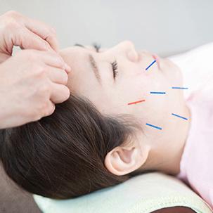 顔面整頓™美容鍼複合ケア